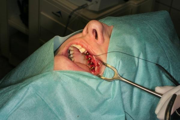 4-Implantate-in-gewuenschter-Position